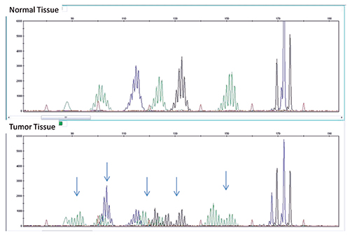 Fig. 3: MSI assay showing multiple sites of instability in tumor tissue (bottom) compared with normal tissue (top). A panel consisting of five mono/dinucleotide markers was used for MSI determination via multiplex PCR. The amplified products were separated by capillary gel electrophoresis. Comparison of peak patterns with a shift in PCR product size of the tumor when compared with normal represents instability. The arrows represent shifts in base pairs as compared with normal tissue.