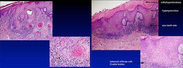 lichen sclerosus hypertrophicus