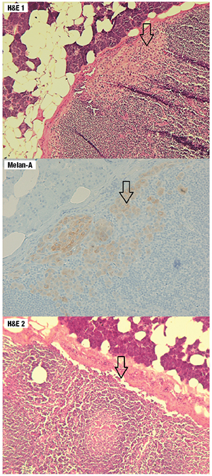 Fig. 1. The top and middle graphics reveal a focus of micrometastasis that is positive for Melan-A. The bottom graphic is the final H&E cut from the same tissue block which shows absence of the micrometastasis, demonstrating paucity of the tumor load.