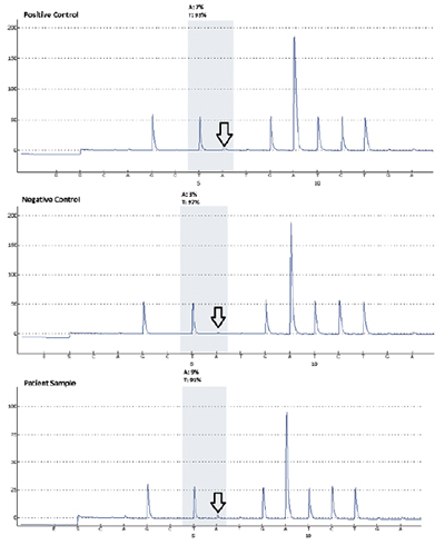 Fig. 3. Appropriate positive and negative controls are seen (as indicated by the arrows) for the BRAF V600E pyrosequencing assay followed by results of the patient sample which indicate the presence of a mutation. The test sensitivity or low limit of detection is validated at five percent mutant allele.