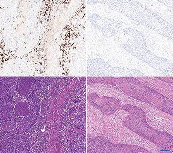 "The left panel shows an ""inflamed"" carcinoma. The upper left shows a strong PD-L1 immune cell staining by SP142/ Ventana. The lower left shows the corresponding HE stain. The stroma is cell rich and contains a high density of immune cells. The right panel shows an ""immune desert"" carcinoma. The upper picture shows a negative PD-L1 immune cell staining by SP142/ Ventana. The lower right shows the corresponding HE stain. The stroma is fibrous and contains fibroblasts without immune cells. Scalebar is 100 µm."