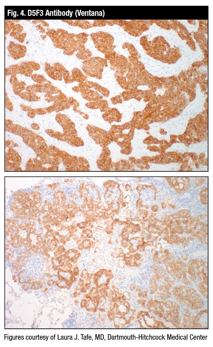 Fig4_molecular