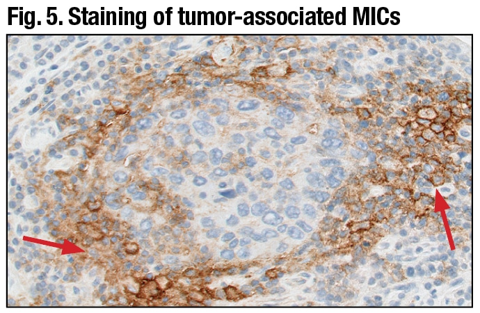 PD-L1 primary antibody exhibiting linear membrane and/or cytoplasmic staining of tumor-associated mononuclear inflammatory cells (arrows) (20× magnification).