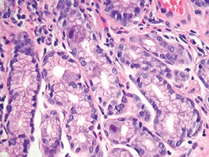 Figure 4.31. Intestinal biopsy shows two epithelial cells with clear cytomegalovirus viral cytopathic effect. Note the lack of associated inflammation (H&E, 200X).