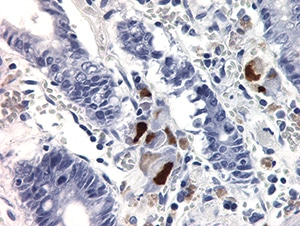 Figure 4.32. Multiple epithelial cells stained positively with cytomegalovirus IHC in a patient with severe gastroenteritis. Endothelial cells (not shown) were also highlighted (400X).