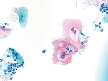 hpv vírus lsil férgek ellen alkalmazott gyógyszerek
