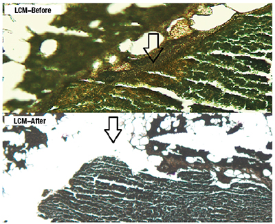 Fig. 2. Laser capture microdissection was performed on the slides, which were cut prior to the final H&E stain. This graphic shows the slides that were stained using the Arcturus Paradise Stain (Thermo Fisher) and the results of before and after the laser dissection process.