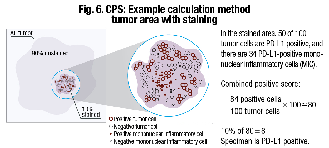 Scoring gastric, GEJ cancers for PD-L1 expression | CAP TODAY