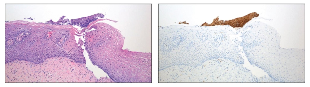 This biopsy has a small detached fragment of atypical squamous epithelium that was either originally overlooked or considered too small to be diagnostic for CIN 2, 3. After p16 staining the case was reclassified to CIN 2, 3 because the detached atypical fragment has strong, diffuse block staining.