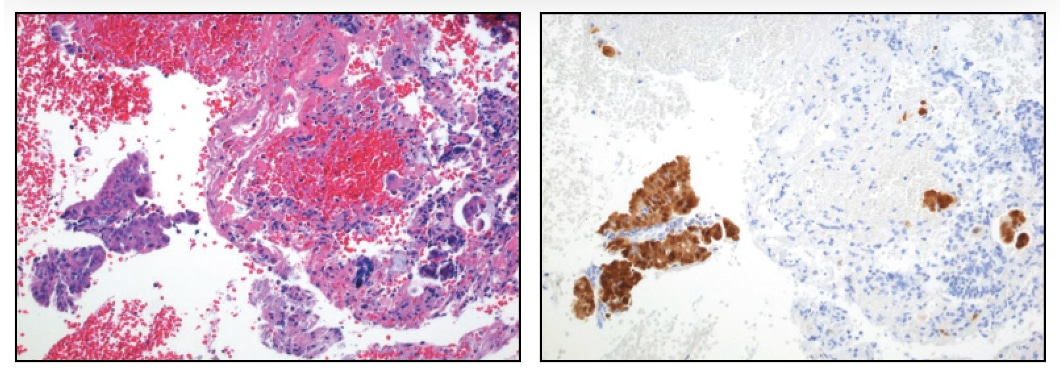 Endocervical curettages not infrequently contain small clusters of atypical squamous cells that are difficult to classify. This case was originally classified as normal, but because the clusters were strongly positive for p16, the case was reclassified as CIN 2, 3.