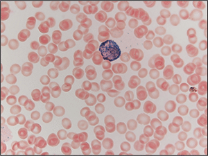 93d15df8793 AMP case report  Acute promyelocytic leukemia with cryptic t(15 17)  identified by RT-PCR