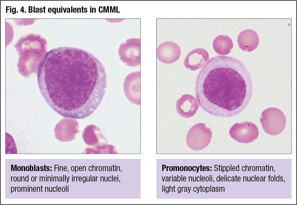 Peripheral blood evaluation: B12 deficiency, anemia, ET, CMML | CAP